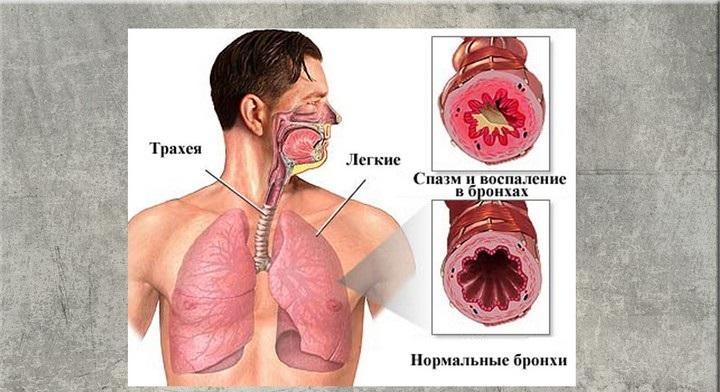 Понятие астмы